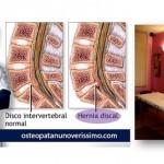 Hernia Discal ou Hernia de Disco | Osteopatia