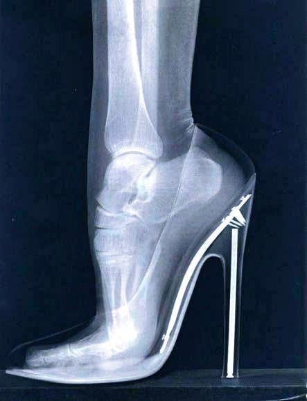 osteopatia salto alto